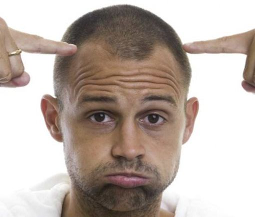Ways to treat Male Pattern Baldness or hair loss