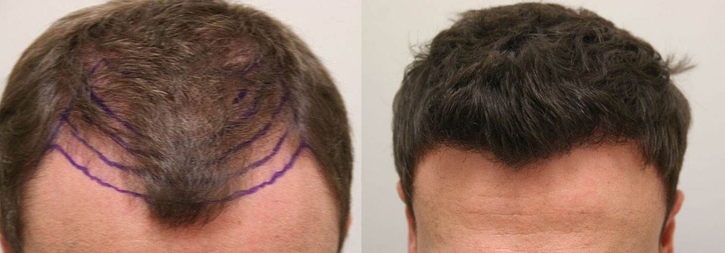 proven effect of minoxidil in post hair transplant
