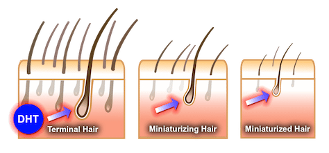 DHT Hair Loss Stages