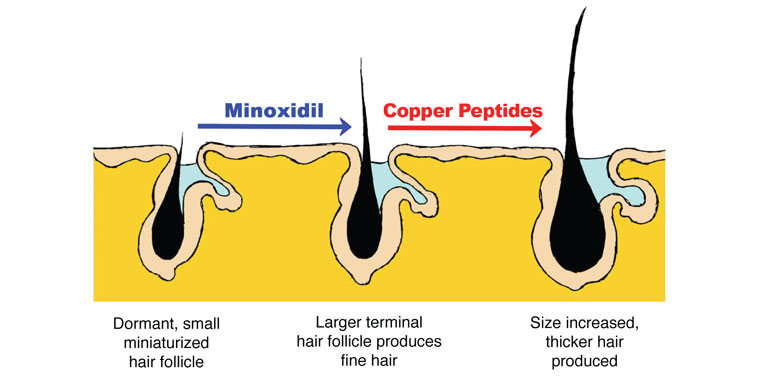 minoxidil_andcopperpeptides
